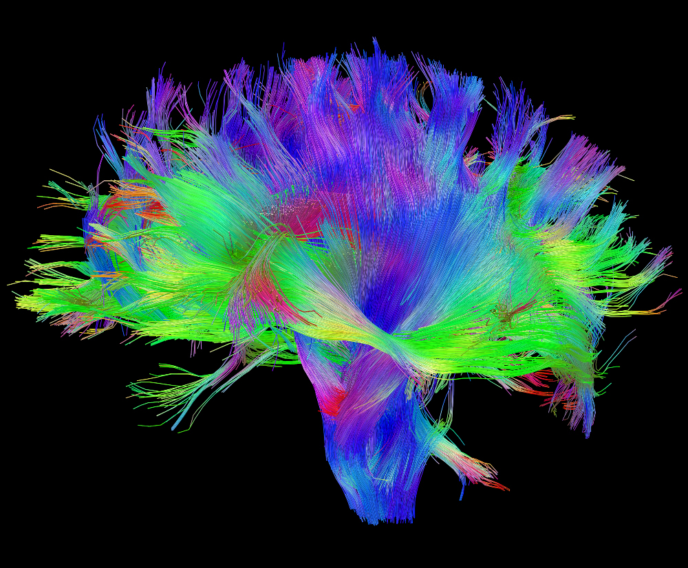 Changing Our Minds: A Journey to the Centre of the Brain